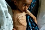 Malnutrition And Maternal Mortality Rates In Afghanistan Among Highest In World